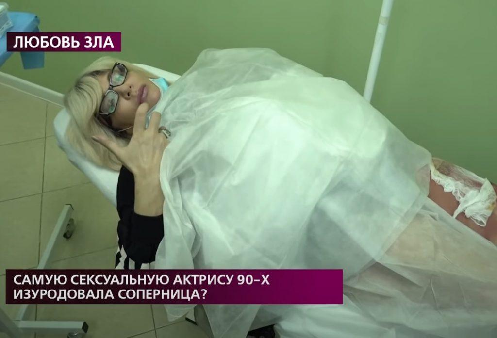 «Она облила меня кислотой»: нижегородская актриса Наталья Лапина рассказала о нападении